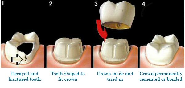 Dental Crowns & Bridge Albuquerque