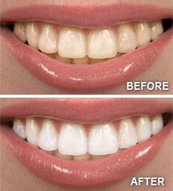 Teeth Whitening Albuquerque