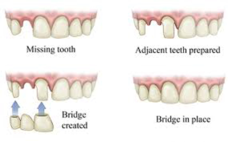 Dental Crowns & Bridge Albuquerque