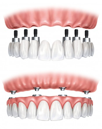 Best Dental Implants in Albuquerque