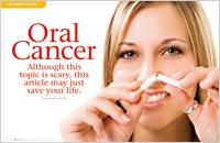 Dental Oral Cancer Screening in Albuquerque