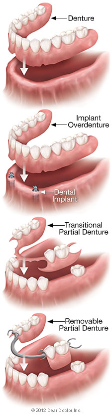 Removable Dentures in Albuquerque