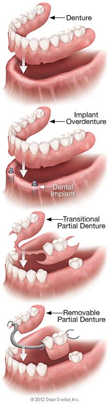 Removable Dentures in Albuquerque