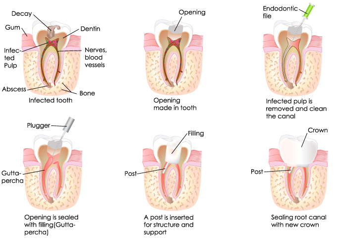 Root Canal Treatment in Albuquerque