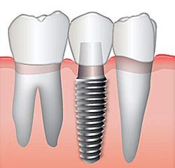 Best Dental Implants in Albuquerque