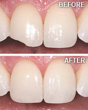Dental Bonding Albuquerque