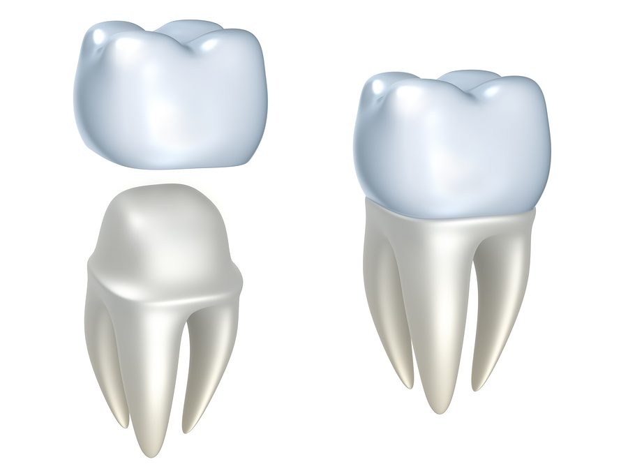 Why CEREC is the Best Way to Restore Your Teeth in a Single Visit