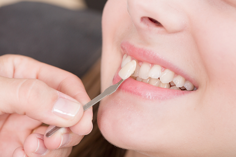 Restoring Your Smile At New Age Dentistry