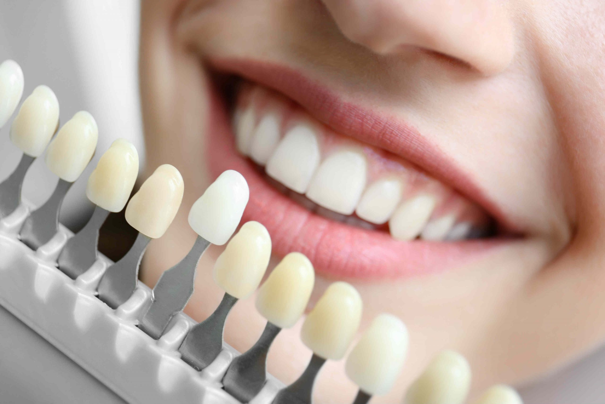 Turn Smile into Style With World-class Cosmetic Dentists!