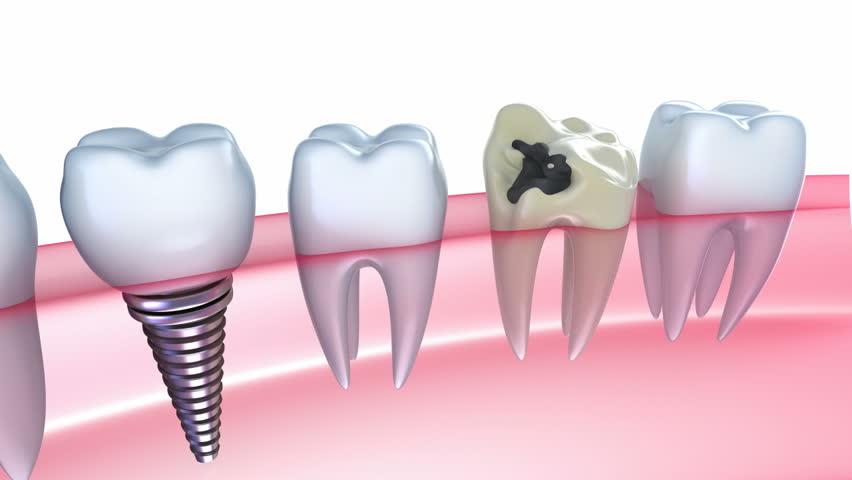 Delightful Advantages of Dental Implants