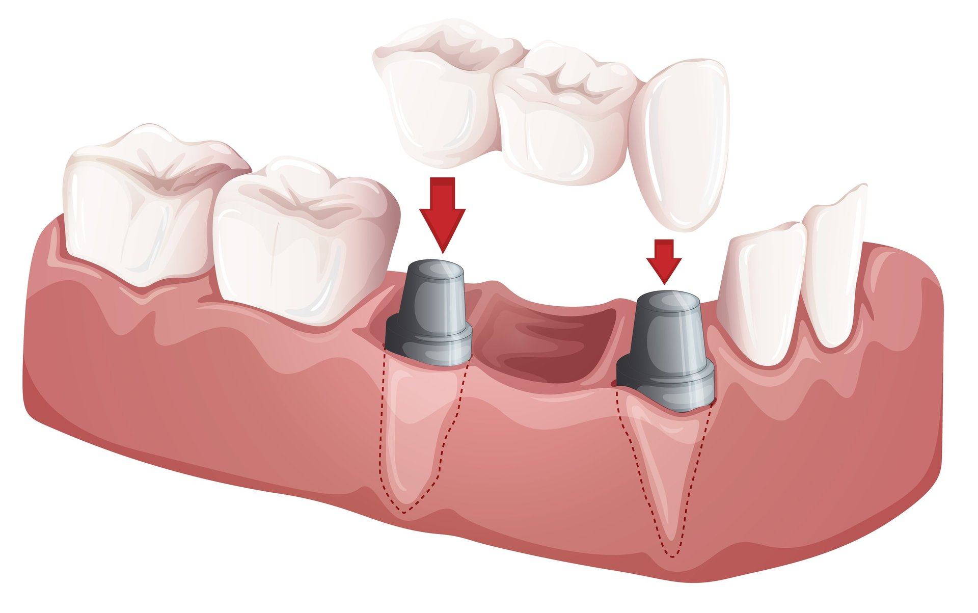 Different Types of Dental Bridges and Crowns