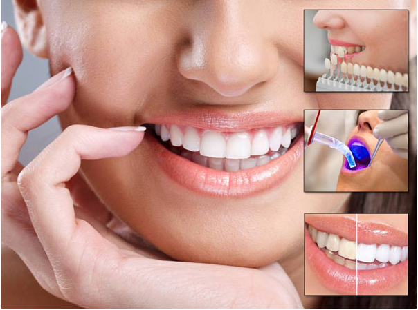 What are the Treatments in Cosmetic Dentistry