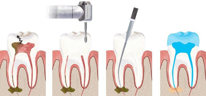 Facts You Need to Know About Root Canal Treatment