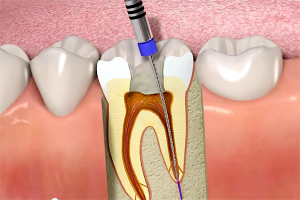 Cost-effective Root Canal Therapy